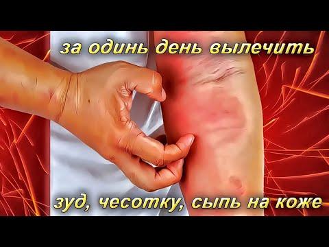 Чесотка, зуд, сыпь на коже можно вылечить за один день
