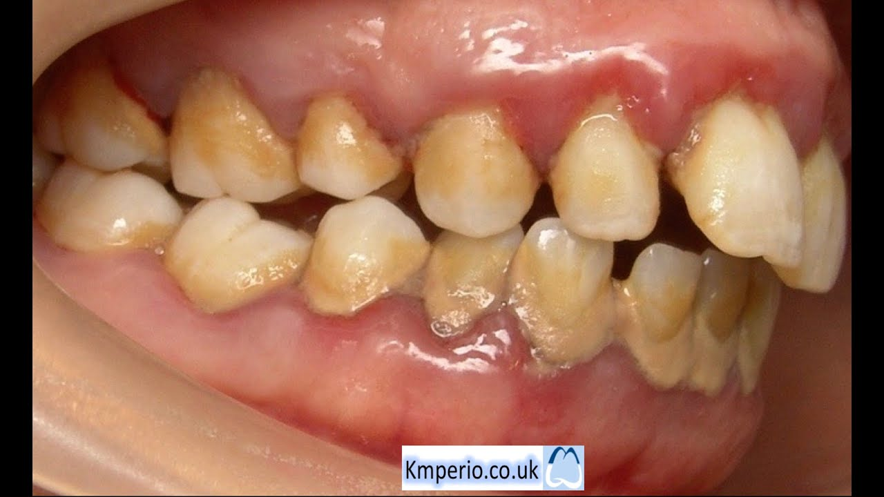 Treatment Of Periodontal Disease Before And After Youtube