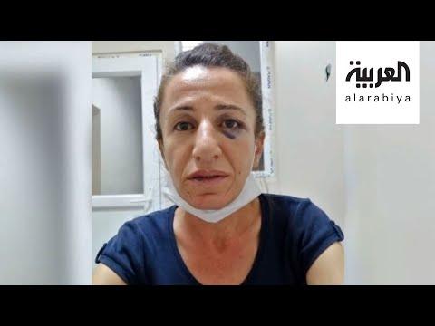 كتلة -الشعوب الديمقراطي- البرلمانية تنتقد تعذيب معارضة تركية  - 20:00-2020 / 6 / 30