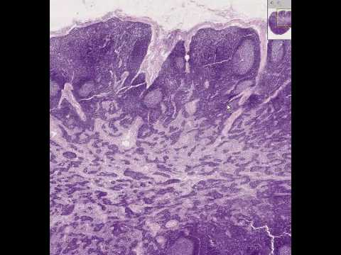 Shotgun Histology Lymph Node