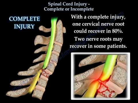 Spinal Cord Injury Complete Or Incomplete - Everything You N
