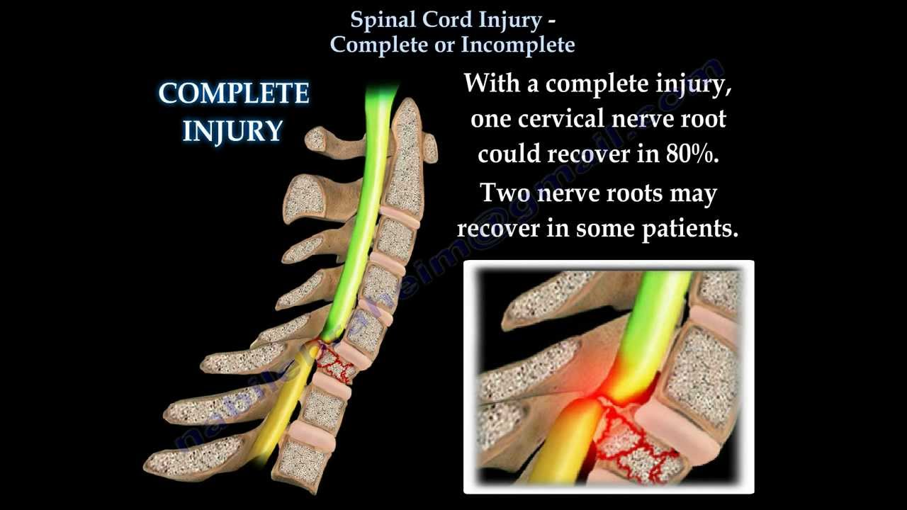 Spinal cord injury complete or incomplete everything you need to spinal cord injury complete or incomplete everything you need to know dr nabil ebraheim youtube sciox Images