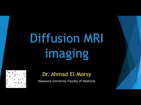 Diffusion weighted MRI - Dr. Ahmad Elmorsy