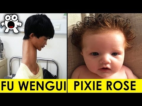 Top 10 Real Kids Born With Unbelievable Incredible Features