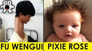 Top 10 Real Kids Born With Unbelievable Incredible Features 2017 Video