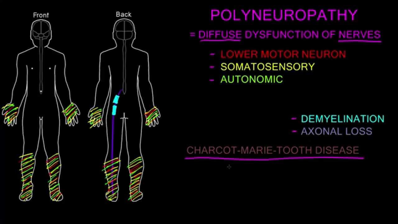 Living with Neuropathy – Welcome to the group | Mayo Clinic