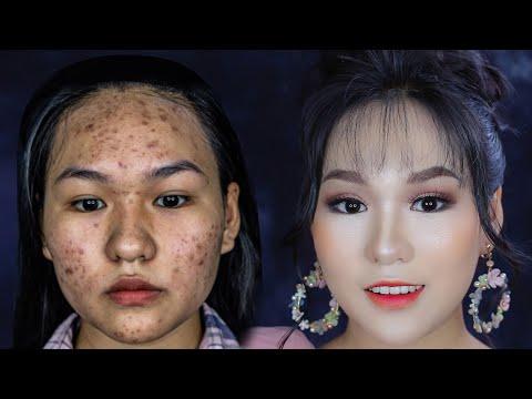 Trang Điểm Da Siêu Nhiều Mụn, Mắt Xếch/Makeup For Acnes Skin And Upturned Eyes