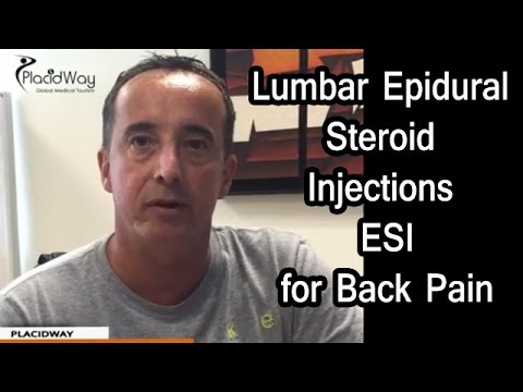 Lumbar Epidural Steroid Injections (ESI) for Low Back Pain in Mexico