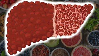 10 продуктов для восстановления печени