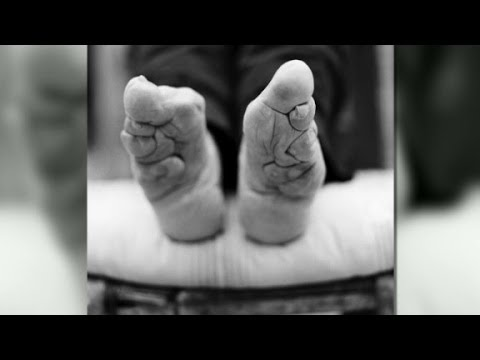 Living with bound feet