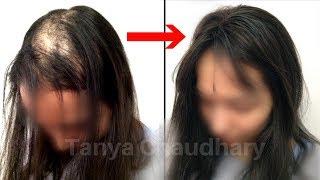 Natural Hair Loss Treatment | Cure Baldness, Hair Fall, Hair Loss & Thin Hair | Grow Long Hair Fast