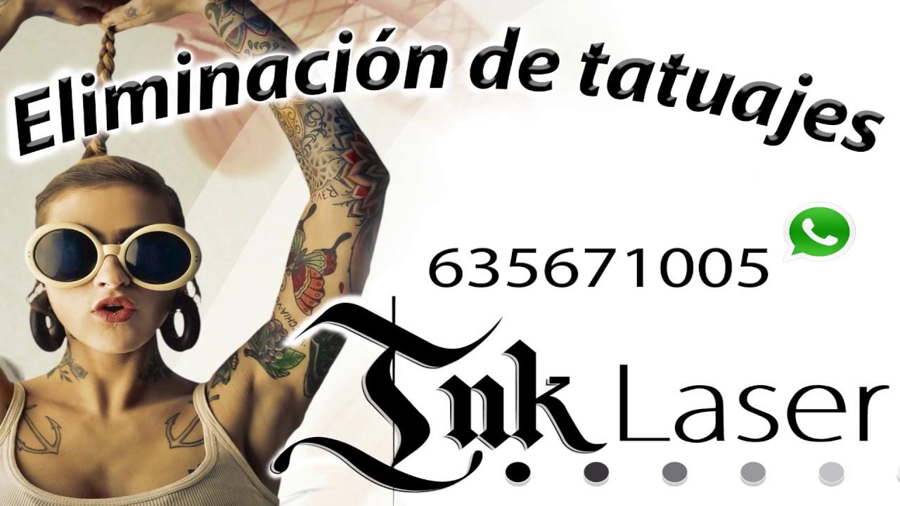 Clínica De Eliminar Tatuajes En Valencia Y Alicante Al Mejor Precio
