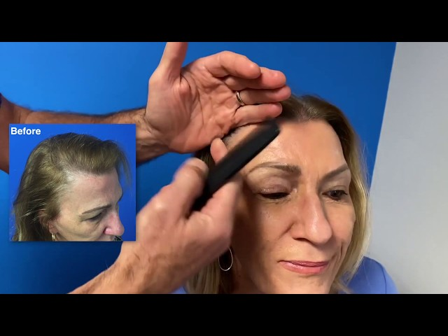 Female Hair Restoration Surgery Profile   Dr  Boden