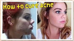 hqdefault - Raw Food Diet Acne Cure