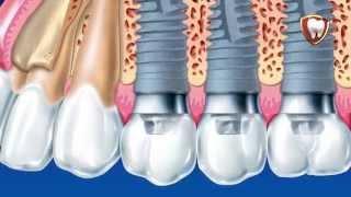 04 Современная имплантология(, 2015-04-07T09:27:56.000Z)