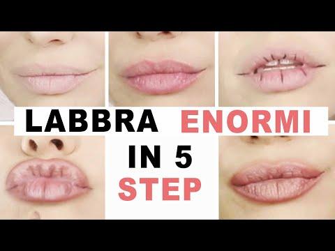 LABBRA CARNOSE IN 5 STEP - ENORMI SENZA FILLER