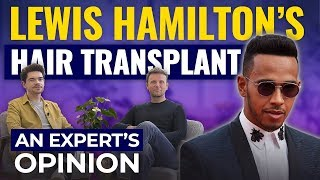 Has Lewis Hamilton Had A Hair Transplant? | Expert's Opinion