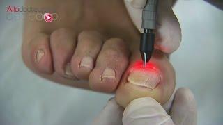 Mycoses des ongles :  le traitement au laser - Allô Docteurs