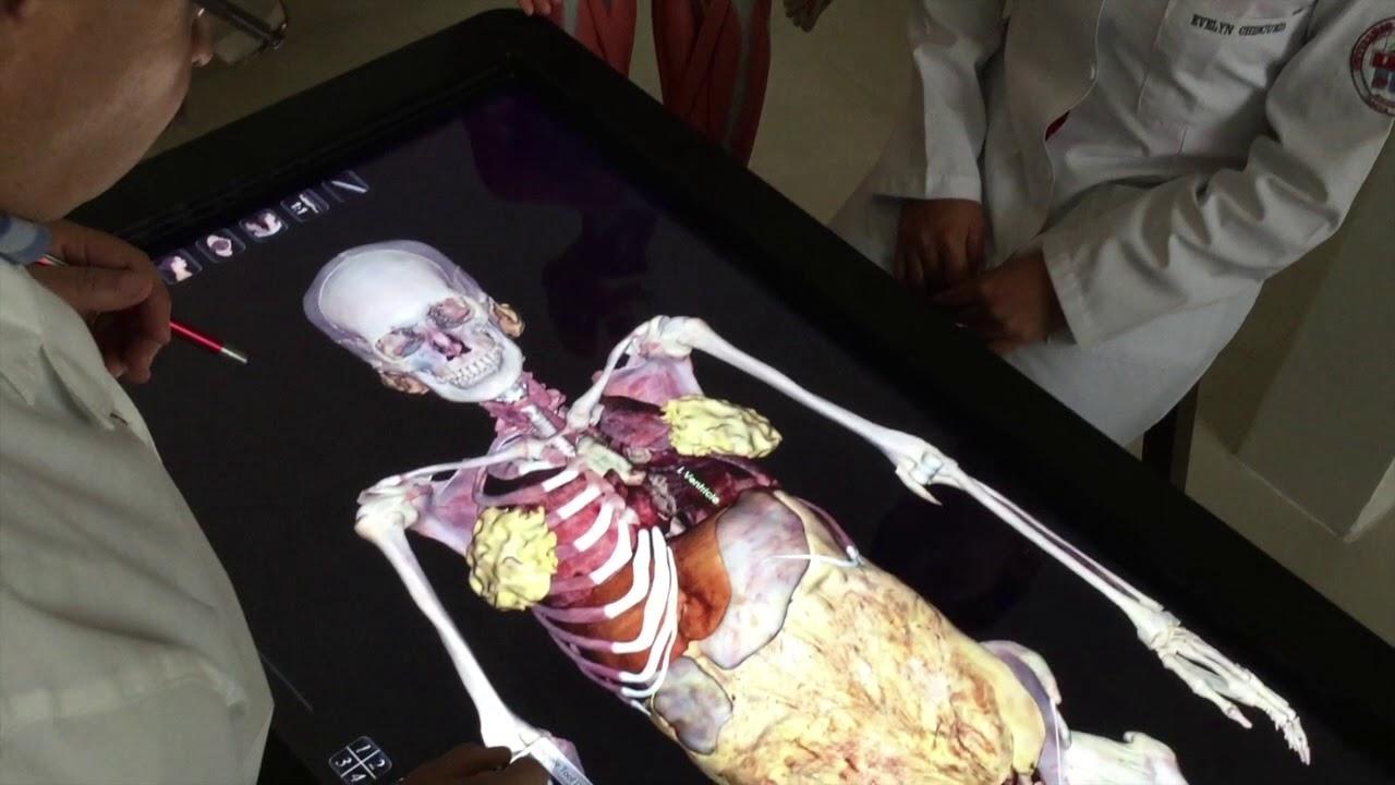 Doctor Dou. Disección de la aorta torácica virtual - YouTube