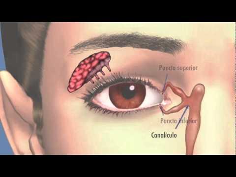 dolor en el lagrimal del ojo derecho