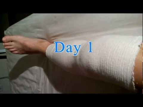 ACL Surgery Recovery - Week One