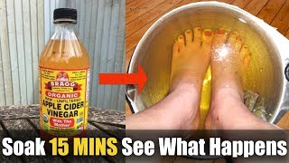 This is what happens when you dip your feet in apple cider vinegar for 15 minutes   Home Remedies