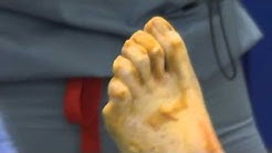 Nailing Down a Solution for Hammertoe