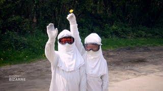 La maladie des enfants de la Lune - Body Bizarre - Discovery Science