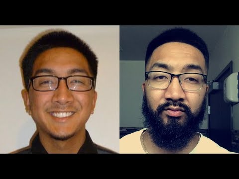 Asian Beard Minoxidil Journey with Commentary