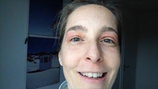 Augenlidstraffung ohne OP – eine Woche nach Laser Oberlid