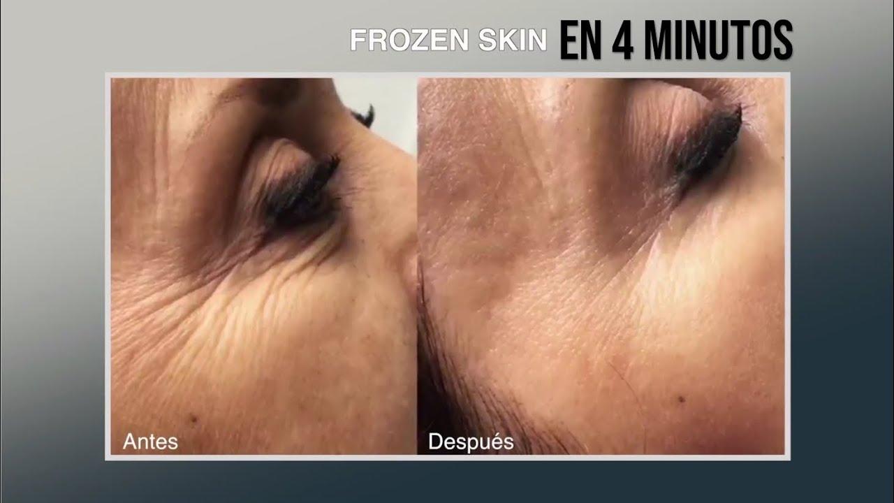Efecto Cenicienta en 4 minutos! Rejuvenecimiento Facial sin cirugía en Bogotá con Frozen Skin