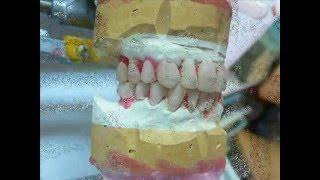 protesi fissa