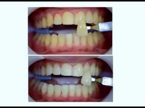 Clareamento Dental Facetas De Porcelana Youtube