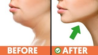 5 Exercise Techniques For Getting Rid of That Double Chin Fast!