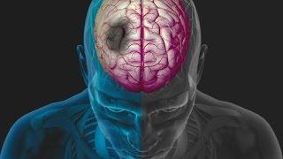 Microangiopatía cerebro leve