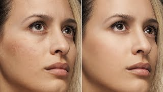 Basic skin retouch tutorial in photoshop