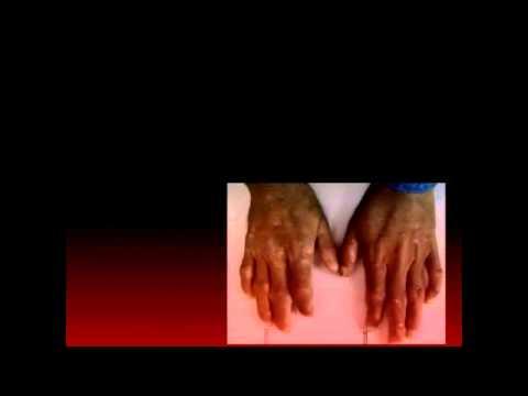 Genetic Disease, Porphyria (Also known as the Vampire Disease)
