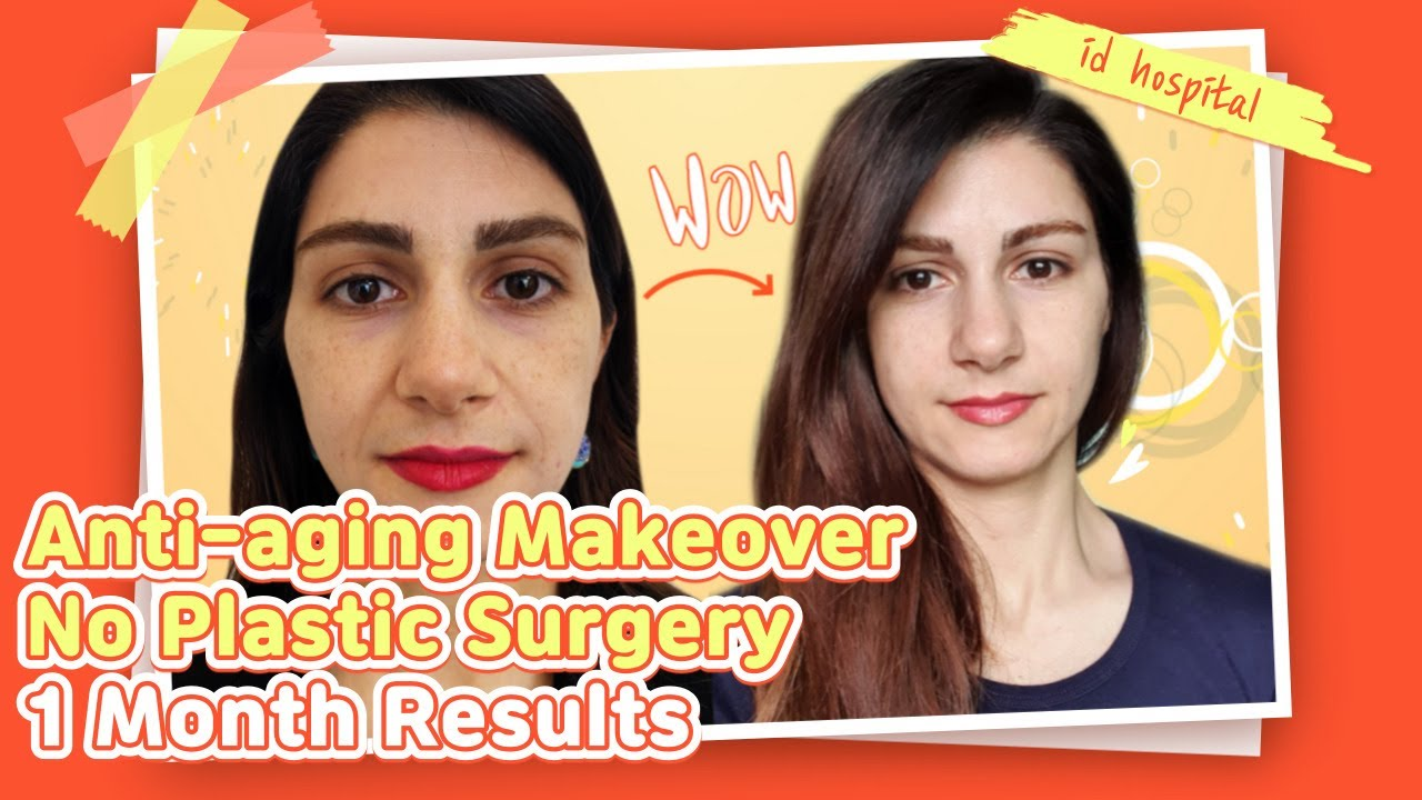Anti-aging Makeover at ID Hospital Part 2   1 Month Results