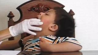 Terapia de lenguaje en niño con síndrome de Down DIDAKTA TERAPIAS   I parte