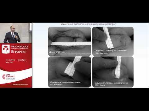 Восстановление эректильной дисфункции после радикальной нервосберегающей простатэктомии