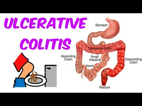 Ulcerative Colitis- The Only Video You Will Ever Need!