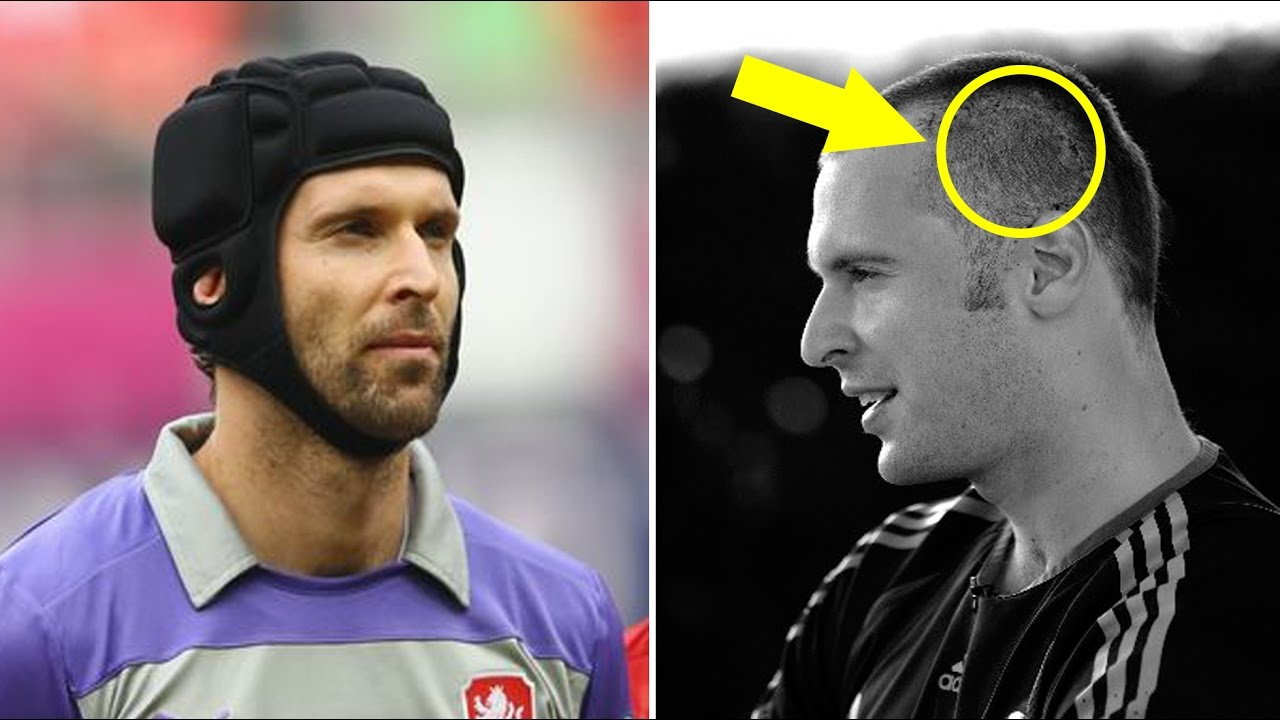 Do you know why Petr Cech wearing a helmet on his head