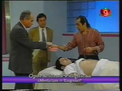 Cirujanos filipinos -