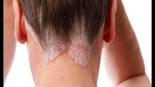 Scalp Psoriasis Home Remedies