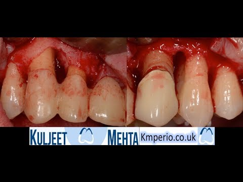 Can You Save This Upper Dental Bridge?