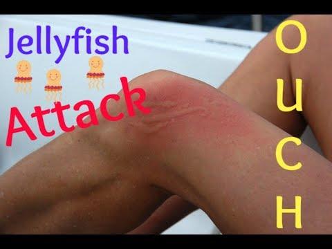 Gulf Shores, Alabama| Jellyfish ATTACK