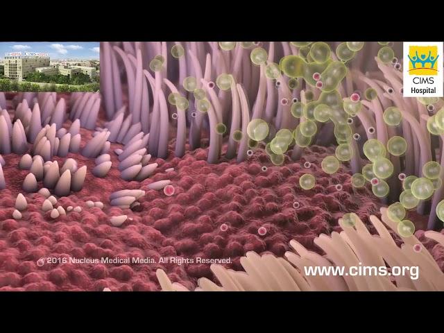 Smoking and COPD (Hindi) - CIMS Hospital