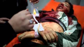Сирия!!! Пытки несовершеннолетних!!!