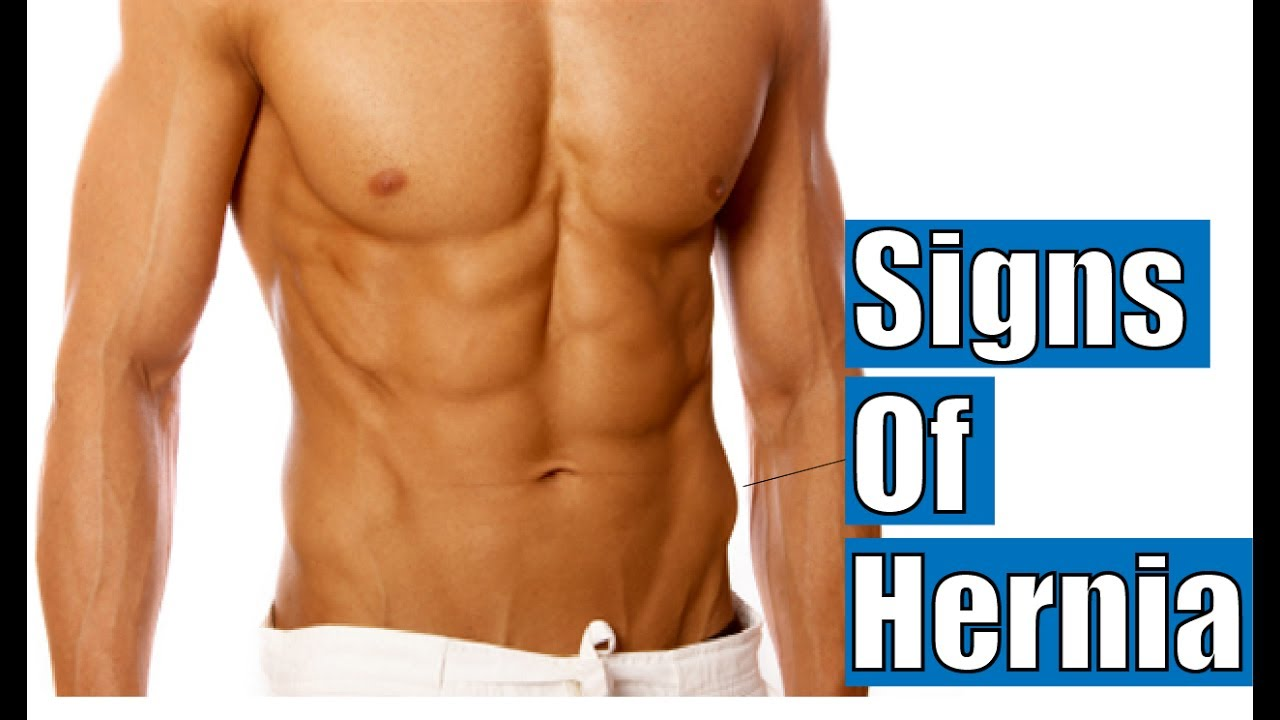 Watch How to Recognize an Inguinal Hernia video