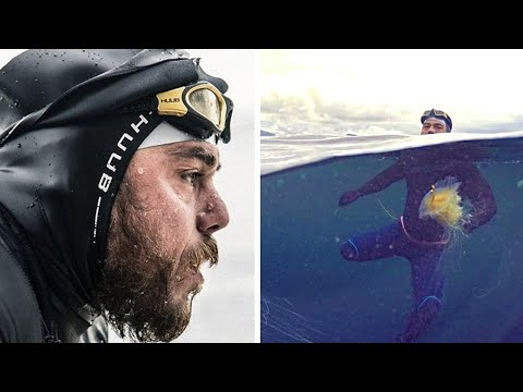 HE SPENT 157 DAYS SWIMMING IN THE OPEN SEA! LOOK WHAT HAS BECOME OF HIM